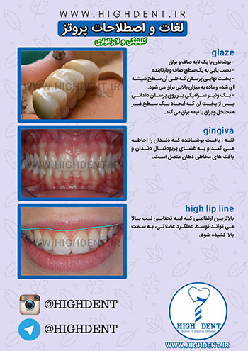 glaze,gingiva,high lip line