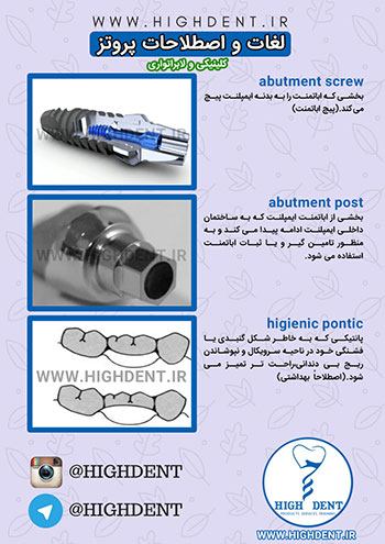 abutment screw,abutment post,higienic pontic
